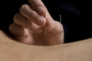 Acupuncture needling